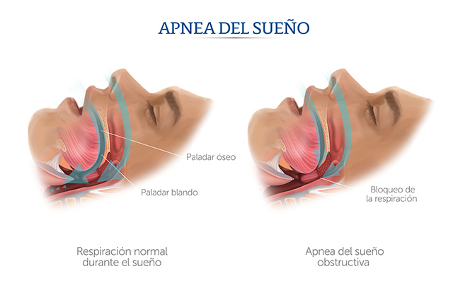 Especialistas en trastornos de sueño León Gto.(ronquido,apnea del sueño)